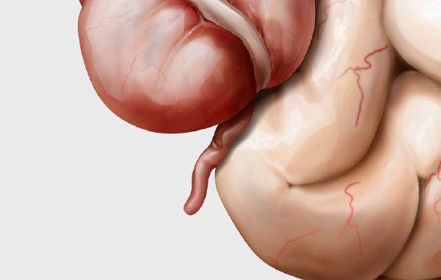 Human digestive system appendix illustration